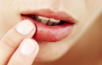 Инфекционные заболевания губ